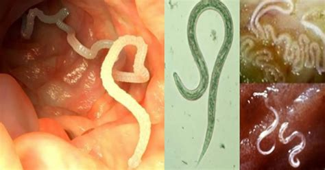 Eliminate Parasites From Your Body Naturally With The Help
